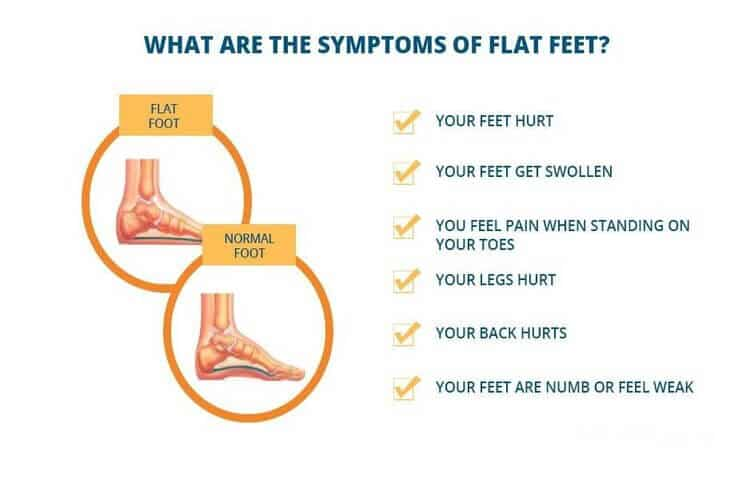 Flat foot disadvantages