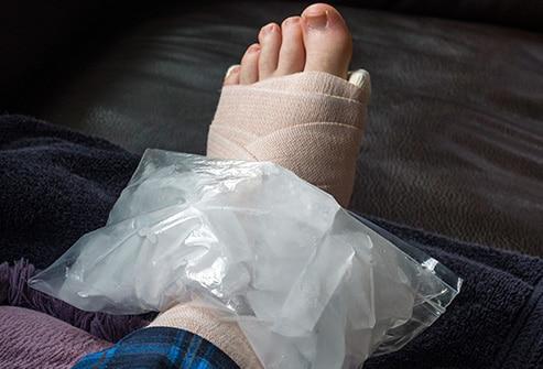 Ice for Swollen Feet